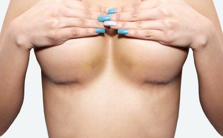 Jak wygląda i z czym się wiąże operacja piersi? – najlepszy opis zabiegu