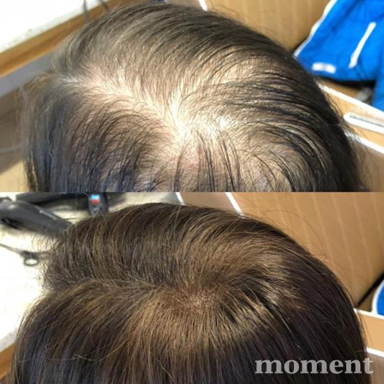 mikropigmentacja u kobiet