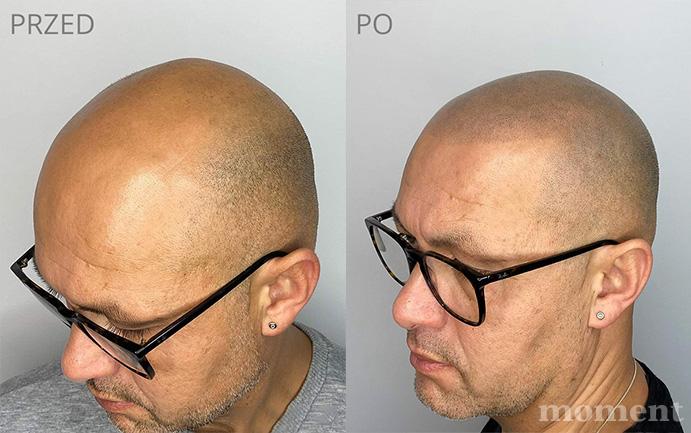 mikropigmentacja przed i po