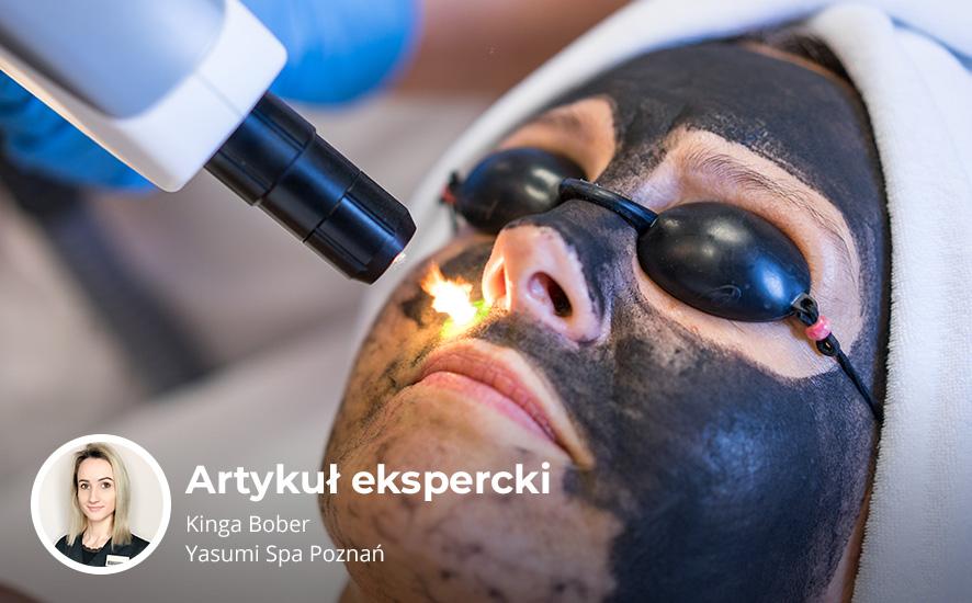 yasumi poznan - Laserowy peeling węglowy